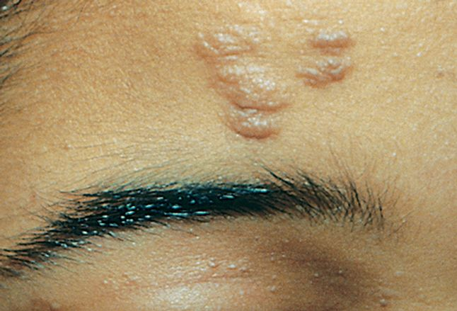 Picture Of Tuberous Sclerosis Fibrous Plaque