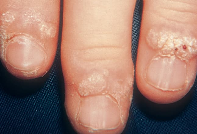 of verrucous papules, Skeleton