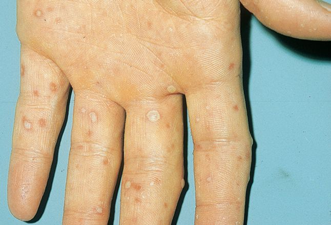 Picture of Hand-Foot-and-Mouth Disease on Hand