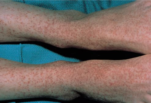 Picture of Rocky Mountain Spotted Fever on Ankles