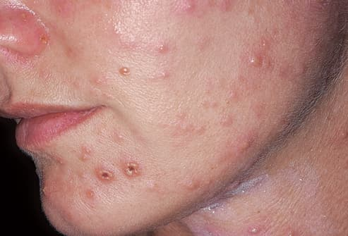 Picture of Varicella-Zoster Virus Infection