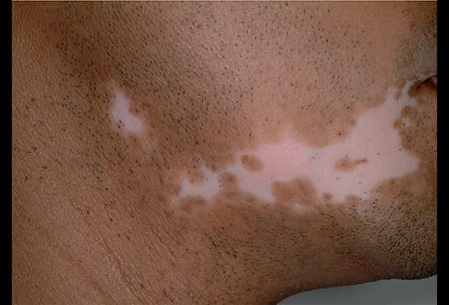 Picture of Depigmented Patch of Skin
