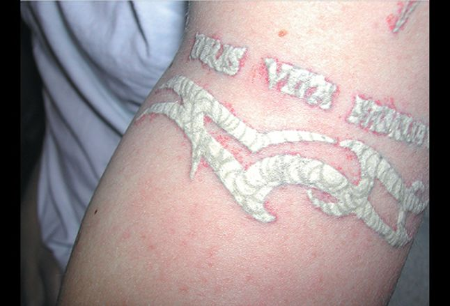 Picture Of Tattoo With Q Switched Laser Treatment