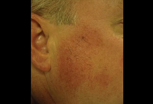 Physicians who treat Skin Tags Removal in New Jersey  WebMD