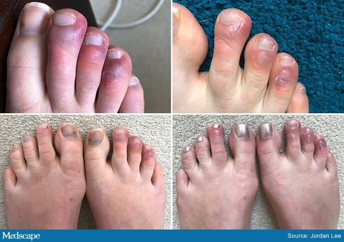pictures of COVID toes