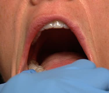 Teeth rubbing on inside of lip during oral sex