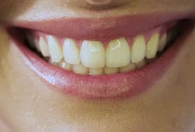 How To Whiten Your Teeth Video From Webmd