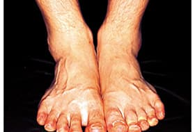 Why Diabetes Patients Must Check Feet Watch Webmd Video