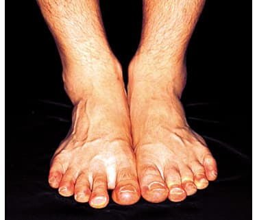 Why Diabetes Patients Must Check Feet - Watch WebMD Video