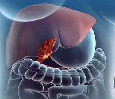 Gallbladder surgery animation watch webmd video ccuart