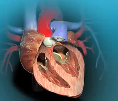 Aortic valve replacement animation watch webmd video ccuart Choice Image