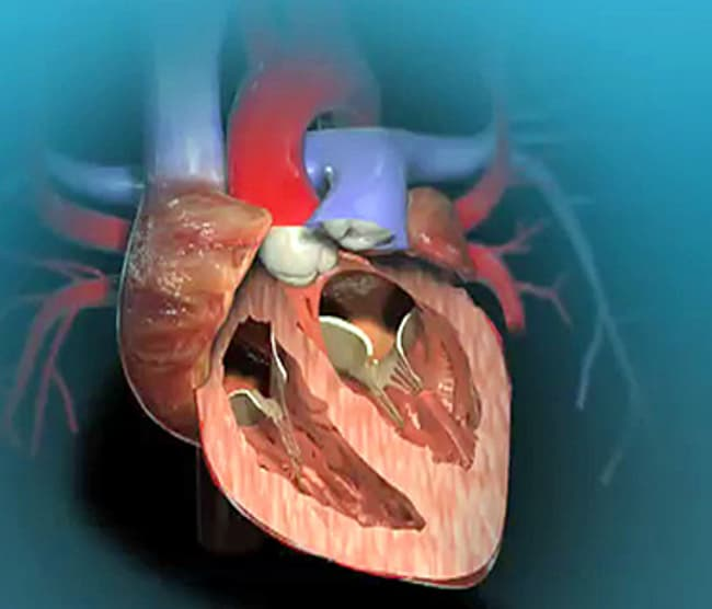 Aortic Valve Replacement Animation Watch Webmd Video