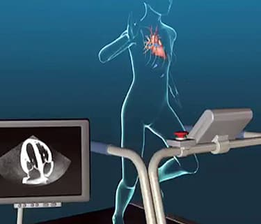 Echocardiogram Animation: How It Is Done - Watch WebMD Video