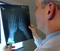 doctor viewing x-rays