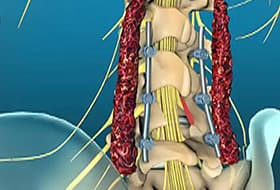 lumbar laminectomy animation how surgery is done watch webmd video rh webmd com