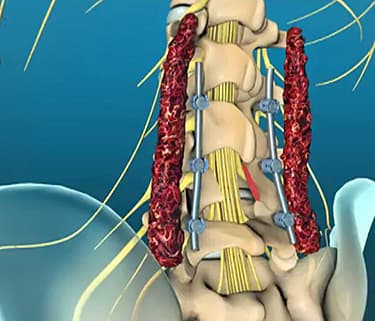 Lumbar Laminectomy Animation: How Surgery Is Done - Watch WebMD Video