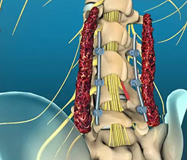 spinal cord and spinal nerves exercise 15 answers