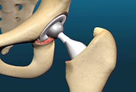 Hip Replacement Surgery >> Total Hip Replacement Animation