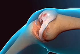 Total Knee Replacement Animation