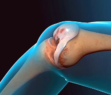 Total Knee Replacement Video Animation - Watch WebMD Video