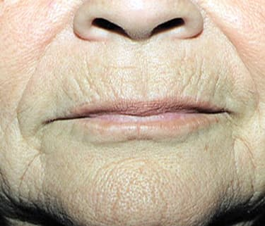 Take Back Your Health: How To Reduce Wrinkles - 8 Things ... |Wrinkly Skin