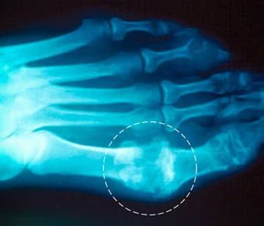 Age, Drinking Raise Women's Gout Risk