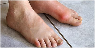 age_rm_photo_of_feet_with_gout.jpg