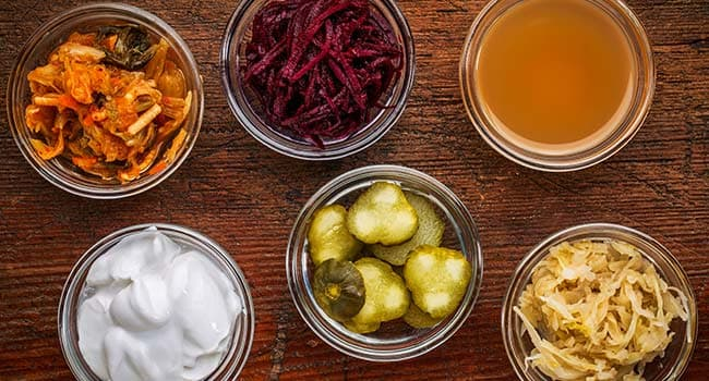 Quiz: What Do You Know About Probiotics?