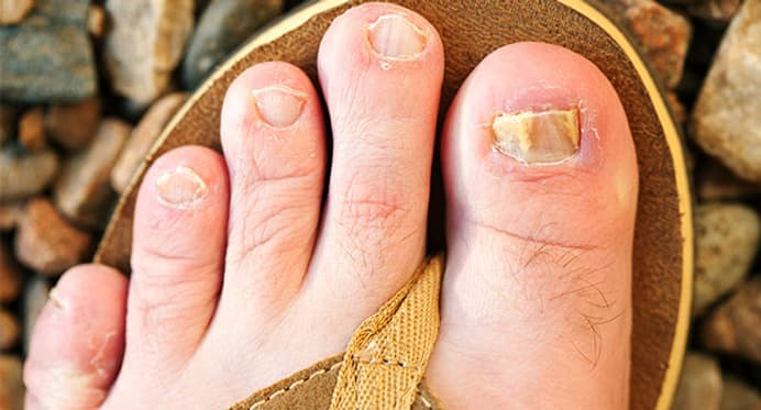 Quiz: Myths and Facts About Toenail Fungus