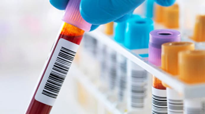 Test Your Knowledge of What Blood Tests Can Tell You