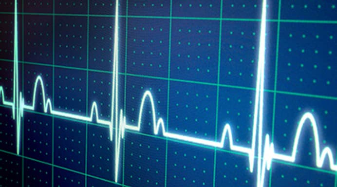 Quiz: What Do You Know About Your Heartbeat?