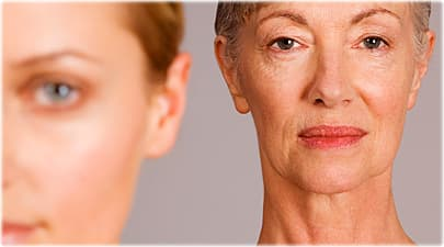 Aging quiz how to reduce wrinkles and look younger botox slide image solutioingenieria Gallery