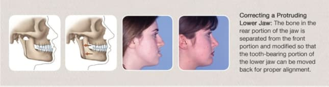 correcting a protruding lower jaw