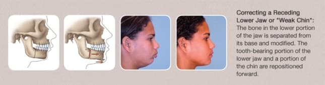 correcting a receding lower jaw or weak chin
