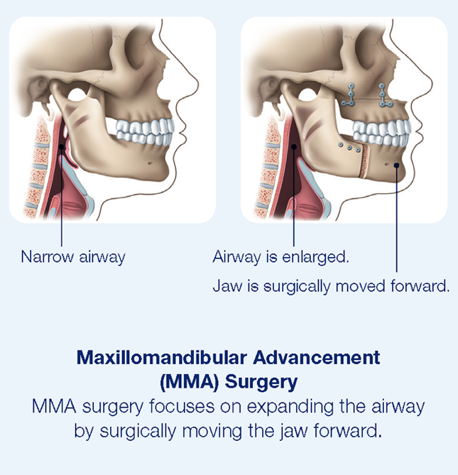 maxillomandibular advancement surgery