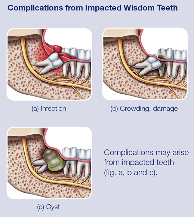 complications from impacted wisdom teeth