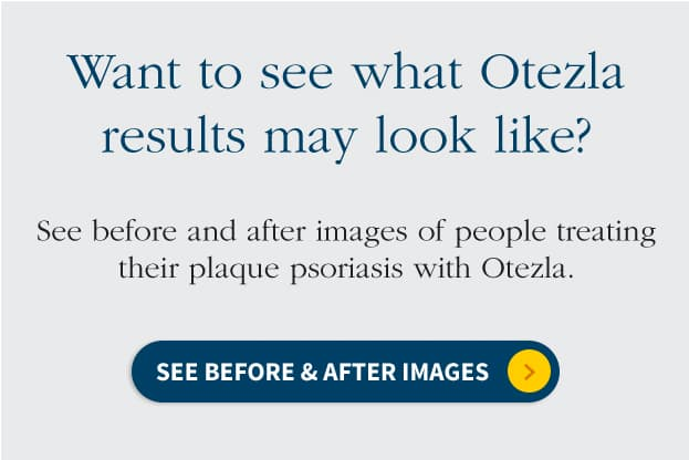 before and after images for otzela