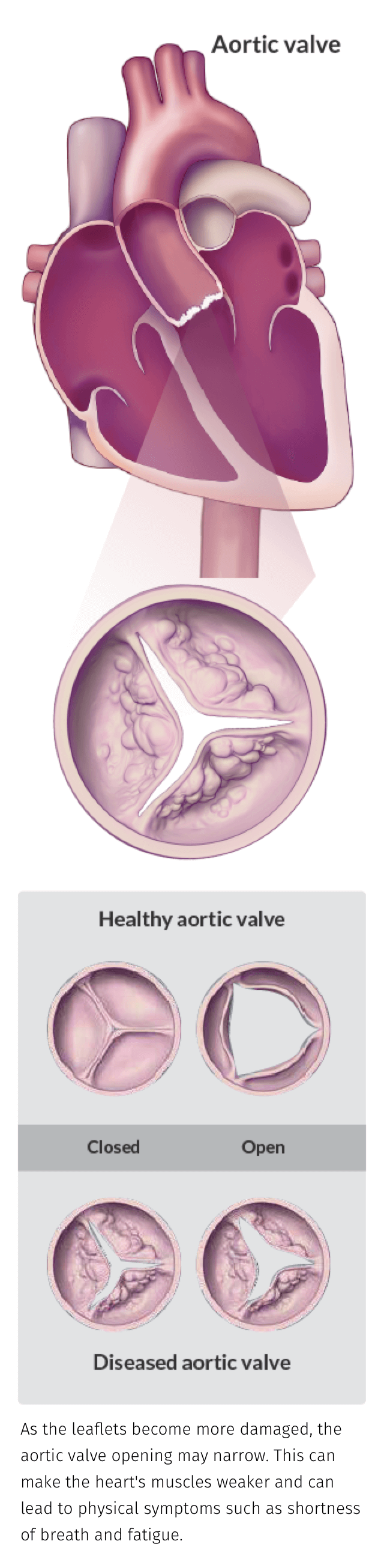 Aortic valves - As the leaflets become more damaged, the aortic valve opening may narrow. This can make the hert's muscles weaker and can lead to physical symptoms such as shortness of breath and fatigue.
