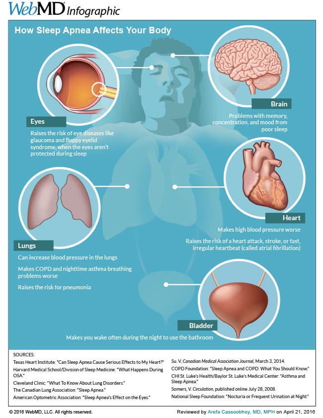 How Sleep Apnea Affects Your Body Infographic