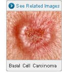 Picture of Basal Cell Carcinoma