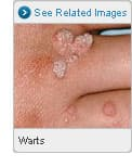 Picture of Warts